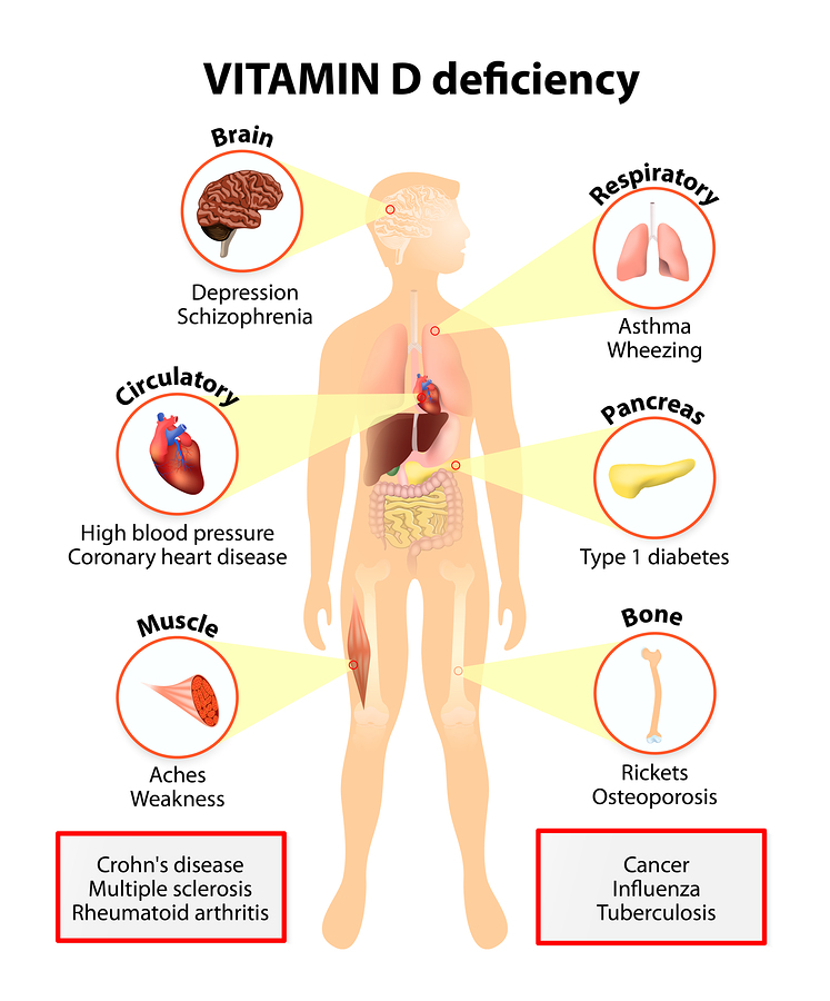 Vitamin D Deficiency Symptoms And Diseases