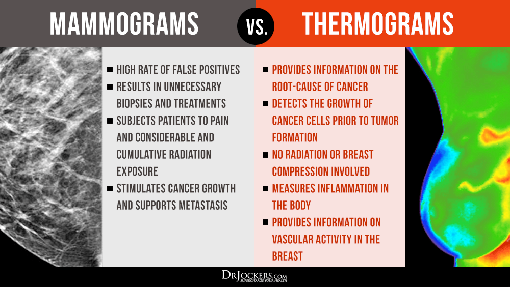 MAMMOGRAMS VS THERMOGRAMS