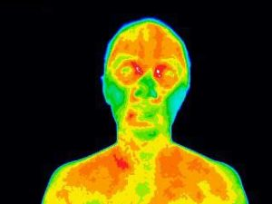 MDITI HealthQuest Thermography Scan