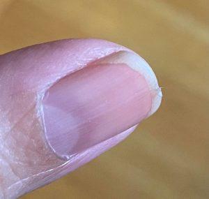 Nail splitting